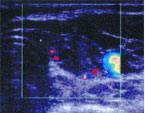 Выполнение пункционной тонкоигольной аспирационной биопсии под ультразвуковым наведением