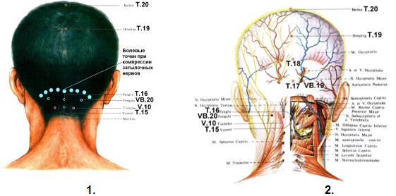 Зоны массажа шеи при остеохондрозе