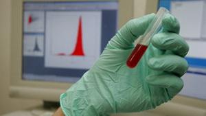Новый тест позволит диагностировать болезнь Альцгеймера на ранней стадии