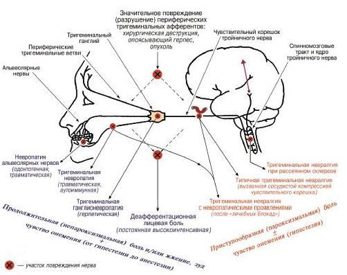 паразиты в суставах человека
