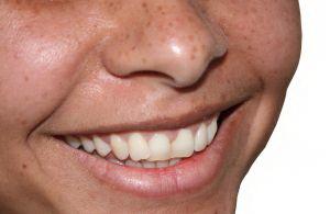 Бактерии в полости рта мешают некоторым женщинам забеременеть