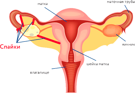 Секс и спайки яичников