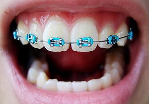 Брекеты на зубы: плюсы и минусы