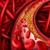 Здоровые сосуды – здоровый организм