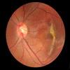 Возрастная макулярная дегенерация — как сохранить зрение?