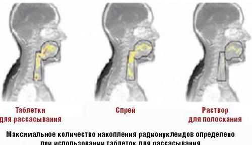 Рис. 1. Распределение активного вещества в полости рта и глотки через 6 мин после приема