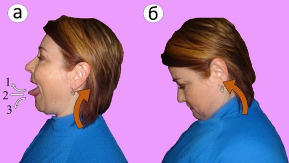 Рис. 4. Целенаправленная тренировка околопозвоночных мышц шеи при помощи язычно-шейных синкинезий. Обозначения: а – первая фаза упражнения, б – вторая фаза упражнения, 1 – положение языка при воздействии на верхне-шейный отдел позвоночника, 2 – положение языка при воздействии на средне-шейный отдел позвоночника, 3 – положение языка при воздействии на нижне-шейный отдел позвоночника