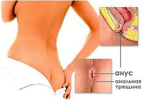 Чем лечить анальные трещенны