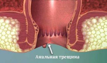 Как выглядит анальная трещина