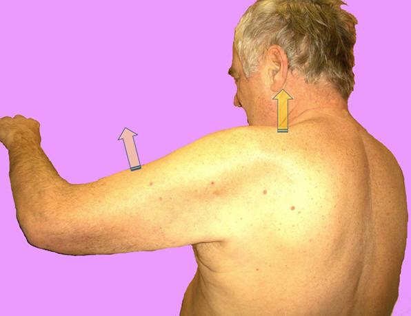 Рис. 11. Больной с синдромом плечелопаточного периартроза отводит плечо «единым блоком» вместе с лопаткой и надплечьем.