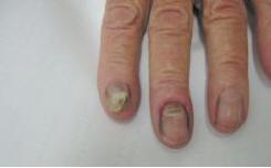 Рис. 4. Онихомикоз различной этиологии у одной больной: на одном пальце недерматомицетный (белая поверхностная форма), на другом — проксимальный кандидозный с паронихией