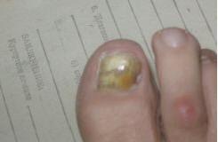 Рис. 8. Недерматомицетный онихомикоз, белая поверхностная форма