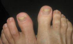 Рис. 2. Онихолизис при нормотрофическом типе поражения