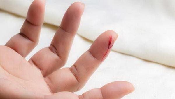 Склеить рану за считанные секунды. Пауки помогли хирургам и их пациентам
