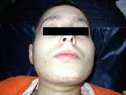внешний вид больной на 40 сутки после травмы