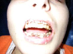 открывание рта