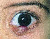 Ячмень - острое гнойное воспаление сальной железы края века.