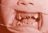 ведущий температура то подымается то опусксется зубы растут трус, лентяй, пьяный!
