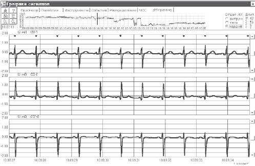 Пример совместных графиков рН