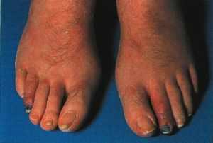 гангрена пальца при сахарном диабете прогноз